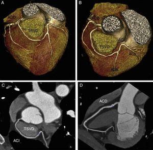 Arteriografía coronaria mediante tomografía computarizada multidetector. Se observa el origen anómalo de la arteria coronaria izquierda (ACI) en el segmento proximal de la arteria coronaria derecha (ACD). Posteriormente, la ACI presenta un trayecto por delante del tracto de salida del ventrículo derecho (TSVD), finalizando en la región anterior del ventrículo izquierdo, y desde allí, origina la arteria descendente anterior (ADA) y la arteria circunfleja (ACx), que siguen un trayecto normal. Origen alto de la coronaria derecha (en la unión sinotubular derecha). A. Reconstrucción volumétrica en proyección anteroposterior. B. Reconstrucción volumétrica en proyección superior. C. Reconstrucción de reformateo multiplanar curvo. D. Reconstrucción de reformateo multiplanar curvo (visualización de la coronaria derecha).