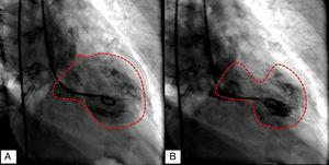 "Cardiac catheterization demonstrating left ventriculography in diastole (A), and ""apical ballooning"" in systole (B)."