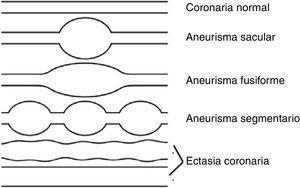 Esquemas de las alteraciones coronarias en la enfermedad de Kawasaki. Modificado de Yim et al.19.