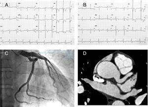(A) ECG shows isolated increase of QRS amplitude with normal QRS axis and normal atrial activation&#59; V2 to V6 with negative deep T waves and V3 to V6 with ST depression. (B) ECG 48h after shows improvement of ST depression. (C and D) Coronary angiogram and computed tomography angiography showed left main (12mm) and proximal left anterior descending coronary ectasia.
