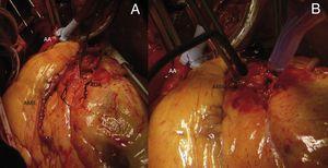 A) Imagen intraoperatoria del aneurisma de arteria coronaria descendente anterior y la arteria mamaria interna izquierda preparada para la realización del bypass coronario. B) Imagen postoperatoria mostrando la exclusión del aneurisma coronario con sutura, y la anastomosis distal del bypass coronario realizado.AA: aorta ascendente clampada&#59; ADA: arteria coronaria descendente anterior&#59; AMII: arteria mamaria interna izquierda.