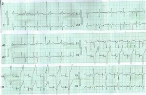 Electrocardiograma del paciente que se muestra en las radiografías de la figura 1. Obsérvese la estimulación DDD. Después de la espiga bipolar en la estimulación ventricular, se observa seudodelta de la captura precoz de la masa ventricular (mejor observada en DI, V5 y V6) y un QRS angosto, correspondiente a la estimulación septal capturando tempranamente el sistema de conducción.