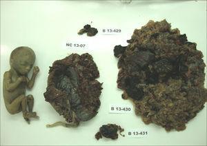 Macroscopia. Feto e placenta à esquerda, sem alterações à macroscopia, ao lado de restos ovulares que evidenciam múltiplas vesículas, compatíveis com doença trofoblástica.