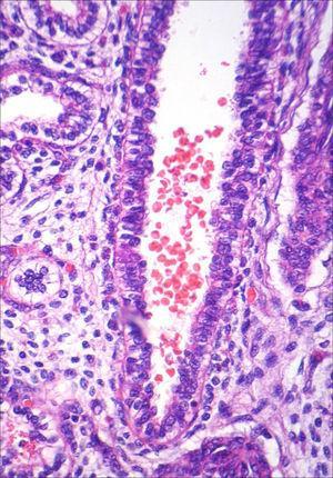 Pulmão fetal (HE, maior aumento). Conteúdo hemorrágico em lúmen brônquico, achado compatível com anóxia aguda.