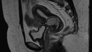 Magnetic resonance image of the pelvis showing a nodular lesion located in the previous caesarean section scar.