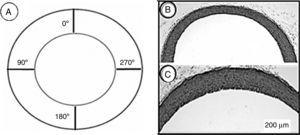 (A) Schematic representation of a cross-section of the aorta showing the locations where measurements of the wall thickness were taken. (B and C) Photomicrographs of aortic wall sections from the CG (B) and TG (C) rats stained with hematoxylin and eosin and taken with the same magnification. The wall thickness in (C) seems to be greater than in (B).