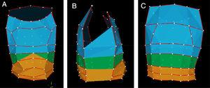 Three-dimensional model of the chest wall obtained by optoelectronic plethysmography during a data collection. (A) Anterior view&#59; (B) lateral view&#59; (C) posterior view. In blue: pulmonary rib cage&#59; in green: abdominal rib cage&#59; in orange: abdomen.