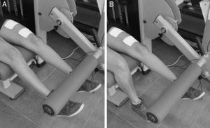 Exercise execution during training sessions – bilateral concentric movement phase for ∼1s (A) and unilateral eccentric phase for ∼4s (B). Images also show the positioning of electrodes used in the ECC+NMES group.