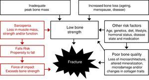 Pathogenesis of osteoporotic-related fractures. The risk for fracture is dependent on both skeletal and non-skeletal risk factors, but fractures result from a structural failure of bone, wherein the loads applied to bone (most often from a fall) exceed its strength.