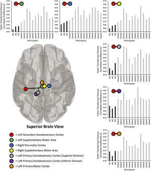 Significantly less prospective connectivity between the left secondary somatosensory cortex (red circle) and six sensorimotor-related regions of interest (ROI; identified by colored circles in legend) between the participants with ACL injury and control participants. Each bar chart represents the individual fisher transformed Pearson correlation coefficients between the average residual BOLD time series between the left secondary somatosensory cortex and the respective ROI (noted by colored circles above each bar chart). All ROI-to-ROI results demonstrate significantly less connectivity for the ACL-injured participants (noted as 'ACL' in bar charts) relative to the controls. Brain is superior view. (For interpretation of the references to colour in this figure legend, the reader is referred to the web version of this article.)