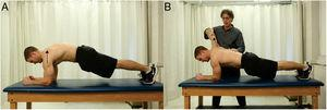 Push-up plus on elbows and toes: (A) bilateral, scapulothoracic protraction (thorax moving on fixed scapulae). (B) Left side shows subject holding relative scapulothoracic protraction; right side shows examiner resisting scapulothoracic protraction (arm and scapula protracting relative to fixed thorax).