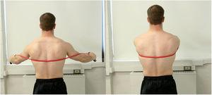 Dynamic hug exercise. Using elastic material as resistance, the subject performs bilateral, maximum scapular protraction.