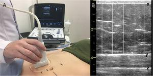 A) Ultrasound measurement, B) Image measurement: (x) internal border of the dermis, (y) superficial aponeurosis of the rectus abdominis muscle and (z) inferior aponeurosis of the rectus abdominis muscle.