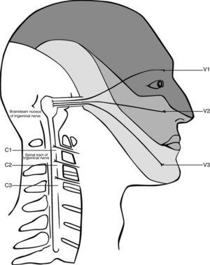 Convergence of the cervical and trigeminal nerves in the brainstem. Adapted from Haldeman and Dagenais, 2001.79