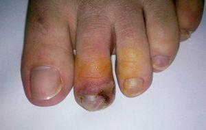 Necrotic appearance of the tip of the second toe of patient's right foot with purple to bluish discoloration.