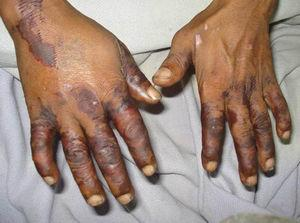 Purpuric rash on hands.