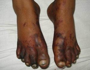 Skin rash and gangrenous changes in lower limb.