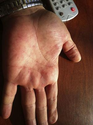 Macular rashes on hands.