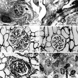 Kidney: glomerulonephritis pattern in dogs with naturally acquired VL. Histopathology (light microscopy) and ultrastructure. (1) Minor glomerular abnormalities. Glomerular, visceral, and epithelial cell vacuolization and protein droplets in the cytoplasm of the podocytes (arrow). Foot process effacement (arrowhead) can be seen. EM. Bar=500μm; (2) focal, segmental glomerulosclerosis. Swelling and effacement of visceral and epithelial cell foot processes. Absence of electron-dense particles from the glomerular capillary basement membrane. EM. Bar=2170μm; (3) diffuse, membranoproliferative glomerulonephritis. Segmental thickening and duplication of the peripheral glomerular capillary wall. PAMS. Bar=25μm; (4) diffuse, mesangial proliferative glomerulonephritis. Normal glomerular capillary wall. PAMS. Bar=25μm; (5) crescentic glomerulonephritis. Fibrocellular or fibrous proliferation occupying part of the Bowman's space. PAMS. Bar=25μm; and (6) chronic glomerulonephritis. Intense activity of fibroblasts, collagen proliferation, and cell remnants in interstitial space. Bar=350μm.