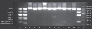 Typing of C. difficile using multiplex conventional polymerase chain reaction (PCR) on 11 clinical isolates. Lane 1: no template control&#59; Lane 2: C. difficile 027 (positive control strain)&#59; Lane 3, C. difficile 078 (positive control strain)&#59; Lane 15: 100bp DNA ladder&#59; Additional lanes: clinical samples numbered according to their identification in the study&#59; The position of the different C. difficile gene toxins (i.e., tcdA, tcdB, cdtA, cdtB, tcdC) as well as 16S rDNA, internal control are marked on the gel, including the deletions for tcdC.