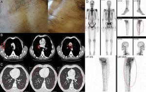(A) Non-confluent maculo-papular rash in the trunk. (B) Contrast-enhanced CT scan showing multiple axillary, hilar and mediastinal lymphadenopathy. (C) Contrast-enhanced CT scan showing bilateral and diffusely distributed pulmonary nodules with ground-glass density. (D) Bone scintigraphy showing increased uptake on the right tibia.