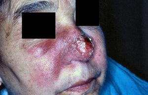 Erythematous-edematous-infiltrative plaque involving mainly the right side of the centro-facial region.