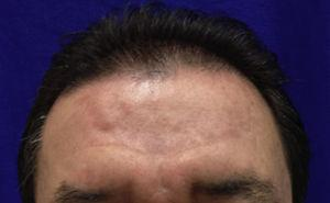 The disappearance of tubero-serpiginous syphilids on forehead after the end of treatment.