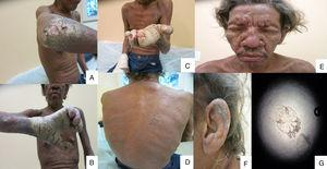 Clinical manifestations of crusted scabies infection (A)–(C) Hyperkeratotic dermatosis with an acral distribution and nail dystrophy; (D) disseminated excoriations, crusts and scaling in the back; (E) and (F) leonine facies, pruritus and scaling, also crusts in the ear; (G) microscopic section of S. scabiei mite showing six legs and the bite apparatus.