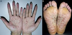 Photograph of the palms and soles of the patient at consultation. There were multiple maculopapules symmetrically distributed over the palms (a) and the soles (b), ranging from 2 to 10cm in diameter. Many of them showed the sign of Biett's Collarette, which is characterized with a central clearing and a rim of collarette scales with surrounding erythema.