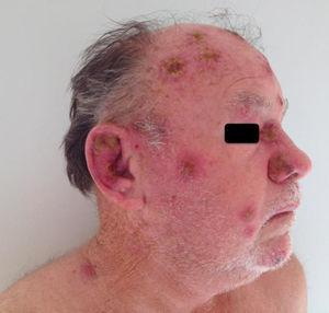 Multiple cutaneous ulcerovegetative and ulcero-crusted reddish lesions were observed on the ears, face, and scalp. Superficial involvement of mucosae was recognized on the nose.