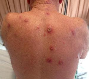 Papules, nodules, infiltrated erythemas were found on the dorsum. Induration of the lesions was palpable.
