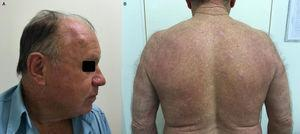 Clinical cure after the treatment. (A) Absence of skin and mucosal lesions&#59; (B) hypochromic-atrophic scars on the dorsum.
