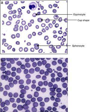 View by optical microscopy of erythrocytes in blood smears. (A) Modified erythrocytes forms from a septic patient with the predominance of echinocytes. (B) Intact erythrocytes from a healthy volunteer.