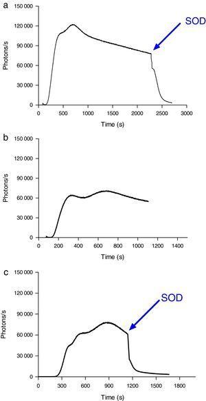 ROS production by neutrophils during contact with erythrocytes, as measured by chemiluminescence. (A) ROS production by neutrophils in the presence of erythrocytes from septic patients. The SOD inhibitor of superoxido was added to some samples. (B) ROS production by neutrophils in the presence of erythrocytes from healthy volunteers. (C) ROS production by neutrophils during contact with erythrocytes that had been oxidatively modified in vitro by treatment with peroxynitrite. The SOD inhibitor of superoxido was added to some samples. The results are representative of three patients.