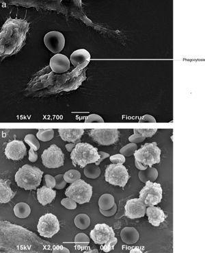 Visualization by scanning electron microscopy of the phagocytosis of erythrocytes by J774 macrophages. Macrophages and erythrocytes were incubated for 1h at 37°C and then fixed with Karnovsky. (A) Adhesion and phagocytosis of oxidatively modified erythrocytes from a septic patient by J774 macrophages. (B) Erythrocytes from healthy volunteer in presence of J774 macrophages.