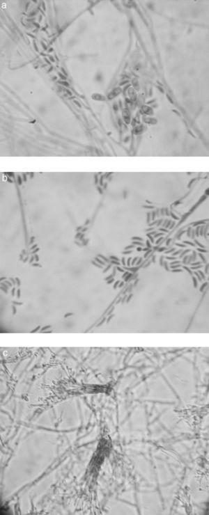 "Microscopic morphology of Graphium basitruncatum from a 10-day old, 28°C potato dextrose agar slide culture demonstrating distinctive microscopic features included hyphae in prominent fascicles, ""sausage shaped"" or curved (allantoid), hyaline conidia with truncate bases (2.5–5.0mm long by 1.5–2.5mm wide) borne from single annellated conidiogenous cells (A and B) (1000×) or similarly in dark, prominent synnemata (C) (200×), and larger, brown, oval conidia (4–6.5mm long and 3–4mm wide) (A) (1000×)."