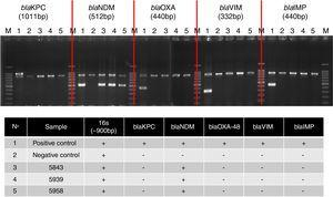 Multiplex PCR assay for simultaneous detection of 16S rRNA (∼900bp), as an amplification control, and carbapenemase genes. BlaKPC: Lane 1, K. pneumonia IOC4955 (positive control)&#59; Lane 2, K. pneumonia ATCC 700603 (negative control)&#59; Lane 3, 5843&#59; Lane 4, 5939&#59; Lane 5 5958. BlaNDM: Lane 1, E. cloacae CCBH10892 (positive control)&#59; Lane 2, K. pneumonia ATCC 700603 (negative control)&#59; Lane 3, 5843&#59; Lane 4, 5939&#59; Lane 5 5958. BlaOXA-48: Lane 1, K. pneumoniae CCBH9976 (positive control)&#59; Lane 2, K. pneumonia ATCC 700603 (negative control)&#59; Lane 3, 5843&#59; Lane 4, 5939&#59; Lane 5 5958. BlaVIM: Lane 1, P. aeruginosa CCBH11808 (positive control)&#59; Lane 2, K. pneumonia ATCC 700603 (negative control)&#59; Lane 3, 5843&#59; Lane 4, 5939&#59; Lane 5 5958. BlaIMP: Lane 1, K. pneumonia BR01 (positive control)&#59; Lane 2, K. pneumonia ATCC 700603 (negative control)&#59; Lane 3, 5843&#59; Lane 4, 5939&#59; Lane 5 5958. Lane M, 100-bp DNA ladder (Invitrogen). The electrophoresis was run in a 2% agarose gel, which was stained with ethidium bromide.