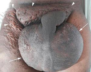 Enlarged scrotum (arrows) and diffuse skin thickening (arrowheads).