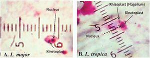 Leishmania parasites identified to species with microscopic observation based on their morphologic appearances. A, oval shapes of L. major amastigotes (average size of 3–5µm)&#59; B, pear shapes of L. tropica amastigotes (average size of 2–4µm).