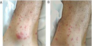Palpable non-blanching purpuric rash compatible with cutaneous vasculitis in left (A) and right (B) ankles.