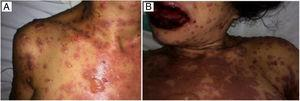 Cutaneous lesions at hospital admission (a) and during treatment (b), revealing epidermis detachment from the underlying dermis, leading to bullae.
