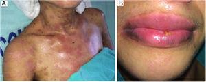 (a, b) Remission of dermal lesions (a) and of mouth mucosa (b).