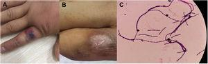 Human cutaneous anthrax in Patient 2. A) Cutaneous anthrax symptom of black eschar and edema on the right index finger; B) Regression of the skin damage after penicillin treatment; C) blood cultures were positive and identified as Bacillus anthracis.