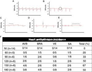 Electrocardiographic analysis of C57BL/6 mice infected with T. cruzi Brazil strain. Heart arrhythmias typification by ECG traces: (A) uninfected animals (NI); (B) T. cruzi-infected mice with atrioventricular block (AVB; black circle), (C) sinus bradycardia (BRA; black line), (D) ventricular extrasystole (VE; arrow) and (E) sinus arrhythmia (SA: traced line). Quantitative analysis of arrhythmia incidence in uninfected and T. cruzi-infected mice (F). A marked increase in cardiac arrhythmias was noticed during the course of T. cruzi chronic infection.