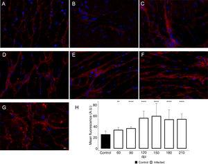 Enhancement of type 1 collagen (COL1) expression in the myocardium of T. cruzi-infected mice. (A) Distribution of COL1 (red) in the cardiac tissue of uninfected mice. A gradual increase in COL1 deposition was noticed in the myocardium at later acute (60 dpi; B) and early chronic infection (90 dpi; C). Dense COL1 fibrils were clearly seen at 120 (D), 150 (E), 180 (F) and 210 dpi (G). The increase in COL1 expression was confirmed by measuring the COL1 fluorescence signal with Knime workflow (H). DAPI (blue) stained nucleus. Bar=10μm. Student's t-test: **p≤0.01; ***p≤0.001; ****p≤0.0001.