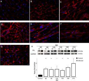 Fibronectin (FN) expression in chronically infected C57BL/6 mice. (A) FN spatial distribution in the myocardium of uninfected mice. (B–G) Thick deposition of FN was observed in the cardiac tissue of T. cruzi-infected mice. Intense fluorescence signal in the myocardium interstitium was observed at 60 (B), 90 (C), 120 (D), 150 (E), 180 (F) and 210 dpi (G). Representative immunoblotting image and densitometric analysis showing a significant increase of FN expression in acute (60 dpi) and chronic infection (90–210 dpi) (H). DAPI (blue) stained the nucleus. Bar=10μm. GAPDH was used as an internal control for protein normalization. Student's t-test: *p≤0.05; **p≤0.01; ***p≤0.001.