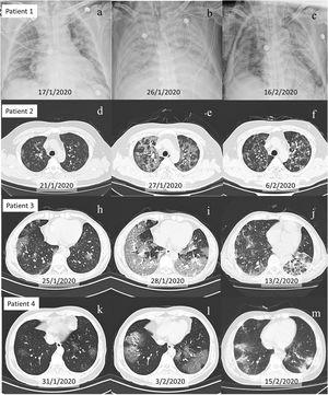 Evolution of chest X-ray and CT scans of four patients with viremia. Figure (a–c), Figure (d–f), Figure (h–j), and Figure (l–n) show chest X-ray and CT scans of patient 1, 2, 3 and 4, respectively. Figure (a), Figure (d), Figure (h), and Figure (k) show mild lesions on admission. Figure (b), Figure (e), Figure (i) and Figure (l) show excessive new ground-glass exudate on CT scans the same or next day positive SARS-CoV-2 nucleic acid test in blood was first detected. Figure (c), Figure (f), Figure (j) and Figure (m) demonstrated recovery of pneumonia after SARS-CoV-2 nucleic acid becoming negative in blood. For patient 1, even after pneumonia was some what improved in Figure (c), other organs dysfunction persistently was observed due to extended viremia.