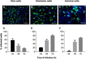 Kinetics of ZIKV infection in cell cultures. The detections of the viral antigen (green) and nucleus of host cells (blue) were performed by immunofluorescence: (A) Vero cells were infected with ZIKV at a MOI of 1 for 24 h, (B) chorionic cells at a MOI of 20 and (C) cervical cells at a MOI of 10 for 48 h. The graphs represent the means ± standard deviations of the percentage of infected cells during the infection kinetics in (D) Vero, (E) chorionic and (F) cervical cells. The data are representative of 3–5 experiments run in duplicate. Bars (A and B) 100 µm, (C) 50 µm.