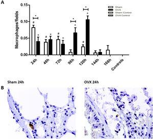 Immunolocalization of macrophages in lung tissue sections from female mice sham surgery (Sham) or ovariectomized (OVX) inoculated with the ATCC 25923 strain of S. aureus or saline (Sham Control or OVX Control). (A) Number of macrophages per field. Data expressed as mean±SEM. Statistical significance (P<0.05) is represented by the symbols (*difference among Sham and OVX groups, with the negative control group, #difference with Sham Control; + difference with OVX Control). (B) Representative photomicrographs of immunolocalization of macrophages (original magnification ×400).