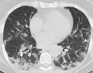 Unenhanced CT was obtained 14 days after the onset of symptoms. Manifestations of OP with patchy areas of subpleural consolidation showing perilobular distribution (arrow), with associated reticular opacities (arrowhead).